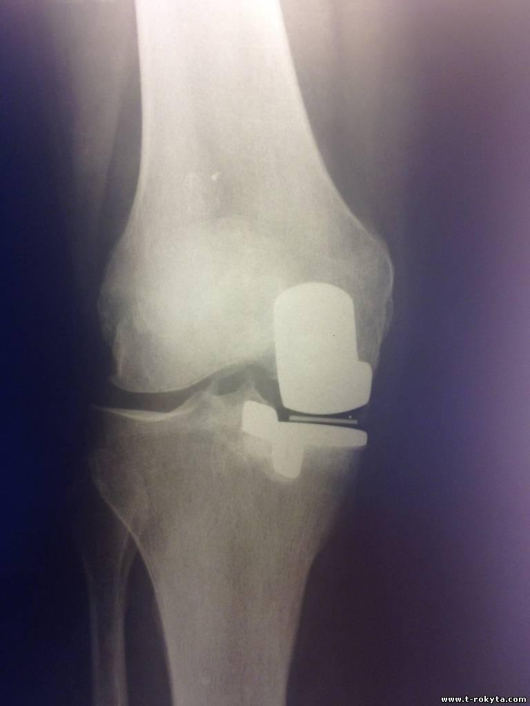 нестабильность сустава после эндопротезирования коленного сустава